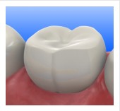 Teeth fillings, Composite Fillings (Tooth-Colored Fillings)