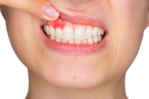 What is Gum Disease